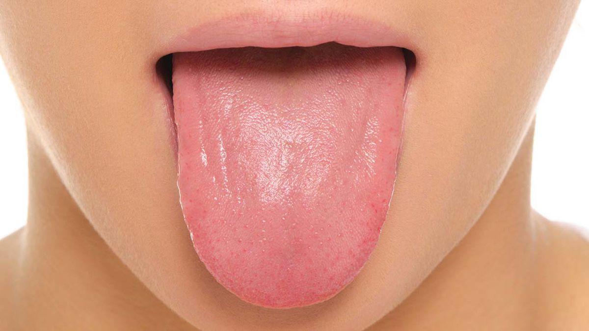 「tongue diagnosis」の画像検索結果